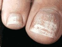 are you concerned about white spots on your toenails tanglewood foot specialists