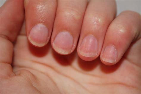 comment arr 234 ter de se ronger les ongles de nailineart