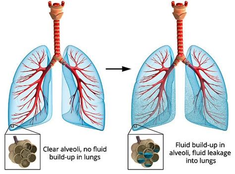 Fluid In The Lungs Major Causes And Best Treatments  Md. Permacath Signs. Vergo Signs. Urine Color Signs. Traffic Ohio Signs Of Stroke. Dysthymia Signs. Panic Disorder Signs. Whs Signs. Conference Signs