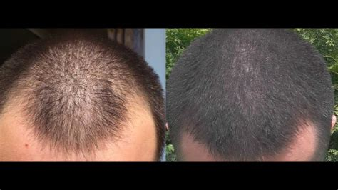 1 year minoxidil hair regrowth results before and after 2013