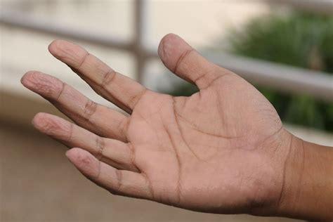 Tipps gegen schwitzige Hände  Das hilft wirklich