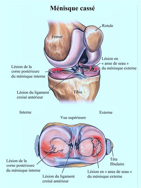 douleur au genou et gonflement kinesitherapie24