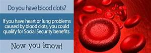 Blood Clots and Social Security Disability