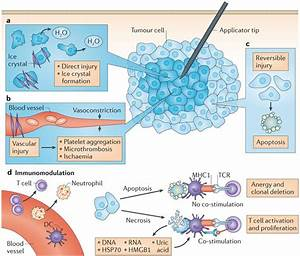 Cryosurgery | Cancer Treatments | Beijing Puhua ...