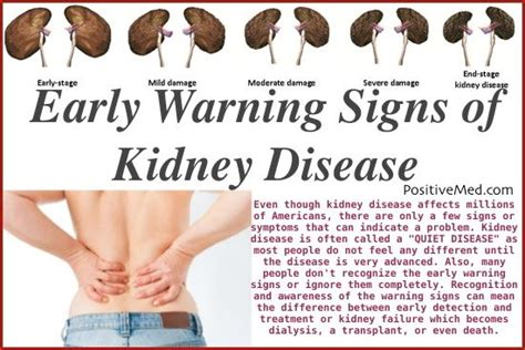 11 Kidney Damage Symptoms Most People Ignore!  Kidney. Systemic Sclerosis Signs. July 5th Zodiac Signs. Curable Signs. Engagement Party Signs Of Stroke. Party Food Signs Of Stroke. Diesel Fuel Signs. Stretch Mark Signs. Unsafe Signs Of Stroke