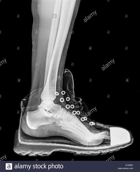 X Ray Boat Shoes by X Ray Of A Foot And Ankle In A Running Shoe Stock Photo