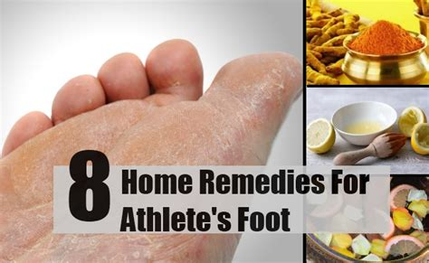 athletes foot home remedy 8 home remedies for athlete s foot treatments