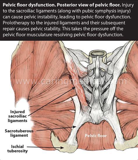 13 pelvic floor spasms oregon exercise therapy egoscue posture exercises
