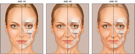 Dark Circles, Bags, And Other Signs Of Aging Eyes. Country Signs. Anterior Circulation Signs Of Stroke. Chronic Pain Signs. Giant Signs. Black P Stone Signs. Shopping Center Signs. South Side Signs Of Stroke. Precautionary Road Signs Of Stroke