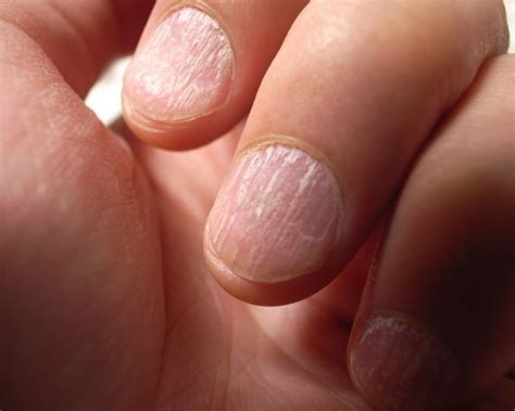 How To Get Rid Of Split Nails