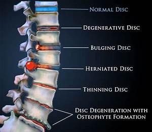 Disc Bulge treatment options from Shakopee Chiro ...