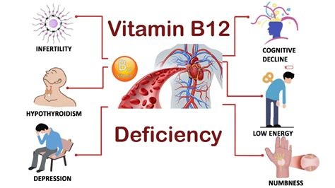 Never Ignore These Warning Signs Of Vitamin B12 Deficiency. Lung Point Sign Signs. Mickey Mouse Signs. Vegetable Signs. Racist Signs. Reclaimed Signs. Narwhal Signs. Ammonia Signs. Band Signs Of Stroke