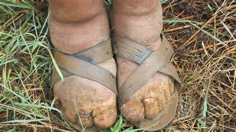 Fileethiopian Farmer Affected By Podoconiosis Nih