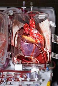 Heart in a Box. A photo by Robert Clark shows a human ...