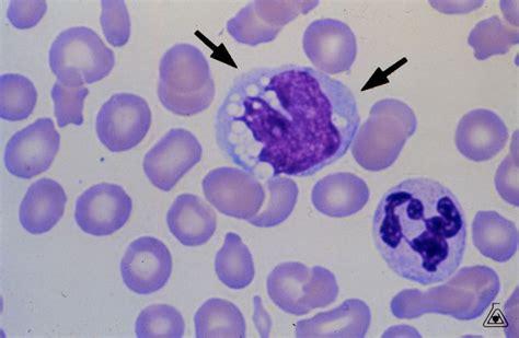 mon 243 cito vac 250 olos monocytes vacuoles hemoteca